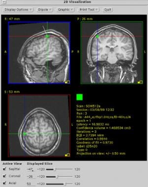 First cortical somatosensory response (N20m) to le
