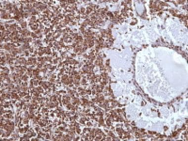 Juvenile granulosa cell tumor demonstrating strong