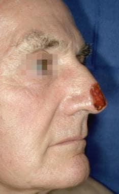 Case 3. Preoperative nasal defect.