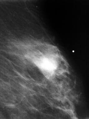 Breast cancer, ultrasonography. Digital spot compr