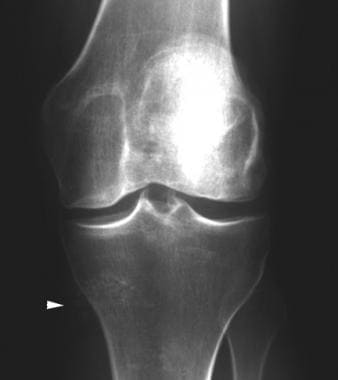 Anteroposterior radiograph of the knee shows calci