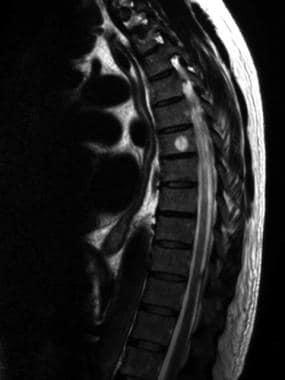 Bone hemangioma. Sagittal T2-weighted MRI in the s