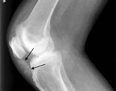 Lateral radiograph of the knee in a patient with c