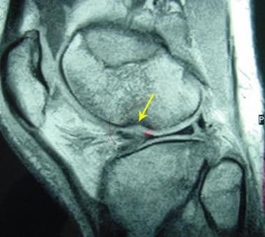 Pivot-shift osteochondral fracture of the lateral