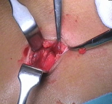 Penetrating lateral wound. (The exploration of thi