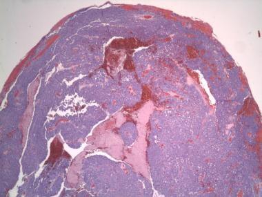 Irregular lobules and sheets of atypical sebaceous