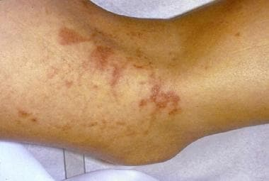 Closer clinical view of bizarre angulated vesicula