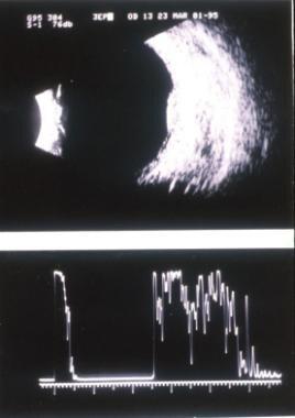 Choroidal hemangioma. Image courtesy of Thomas M.