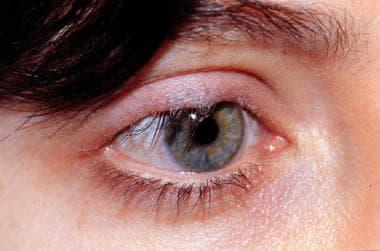 Cicatricial entropion of upper eyelid. Note eyelid