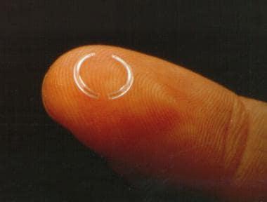 KeraVision Intacs microthin prescription inserts.