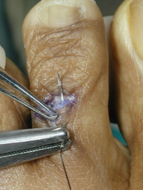 Claw toe. After the pin has been drilled back into