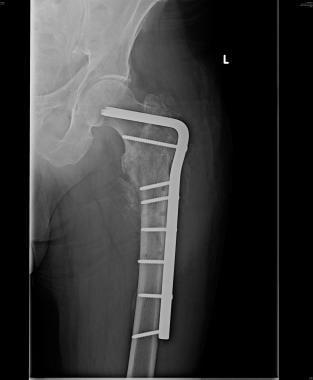 Subtrochanteric femur fracture reduction revised a