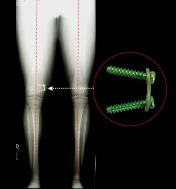 One year following guided growth of the femur with