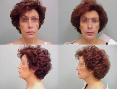 Woman aged 58 years. Left – Preoperative. Right -