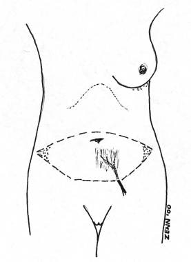 Diagram of the blood supply to the free transverse
