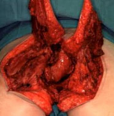 Perineal reconstruction. Bilateral split gluteal f