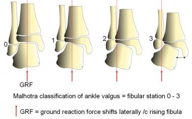 Malhotra classified progressive ankle valgus, whic