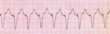 Pacemaker-mediated tachycardia. Rhythm strip showi