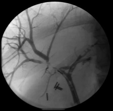 Focal intrahepatic benign bile duct stricture afte