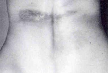 This photograph shows morphea en plaque on the tru