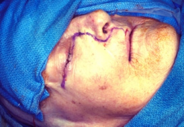 A Weber-Ferguson incision is usually indicated for