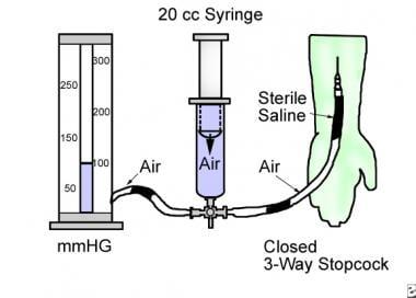 An illustration that depicts measurement of compar