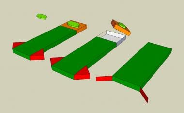 Advancement flap: The rectangular flap advances in