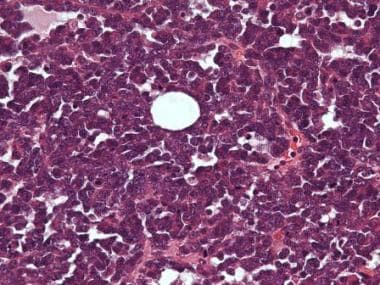Small cell carcinoma, hypercalcemic type shows dif