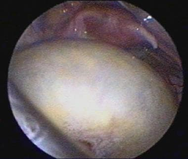 Ovarian cyst in a 10-month-old girl. The uterus an