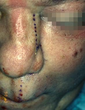 Placement of the incision placed on the ipsilatera