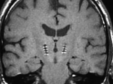 Postoperative coronal MRI demonstrating desired pl