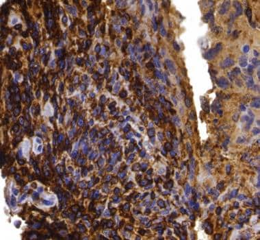 Primary lymphoma of bone is CD45RO positive, which