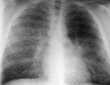 Chest radiograph in a patient after bronchoalveola