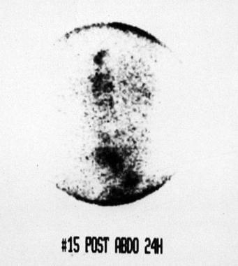 von Hippel-Lindau syndrome. Scintigraphic image of