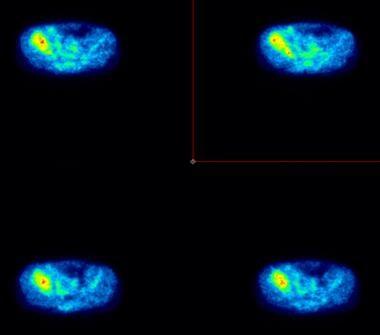 Cross-sectional positron emission tomograms obtain