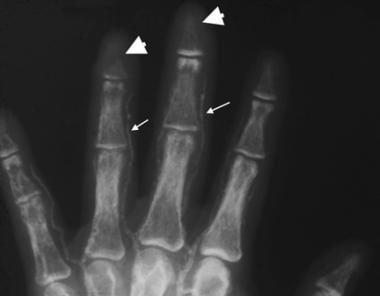 Anteroposterior radiograph of the fingers in a pat