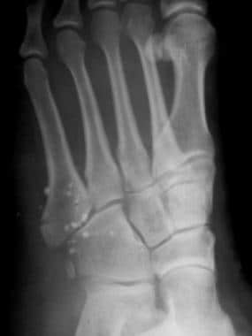 Fractured metatarsals. Transverse fracture of the