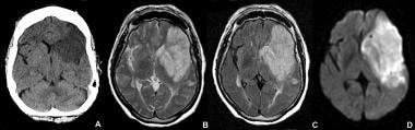 Subacute infarct appears as a hypodensity on a CT