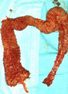 Surgical specimen of the colon in a patient with f