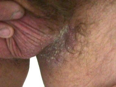 Erythema of scrotum and erosive plaques in left gr
