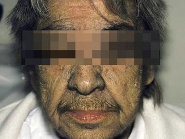 Idiopathic hirsutism in an elderly woman.