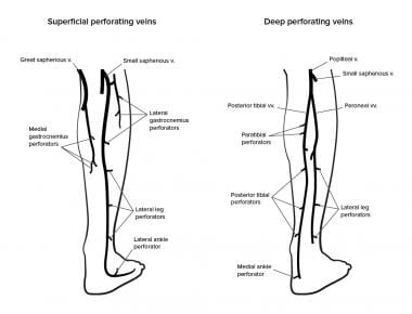 Perforating veins of lower leg.