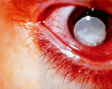 Secondary glaucoma is characterized by elevated in
