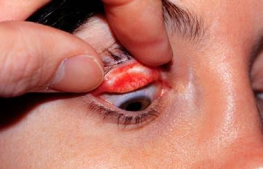 Cicatricial entropion of the upper eyelid with eye