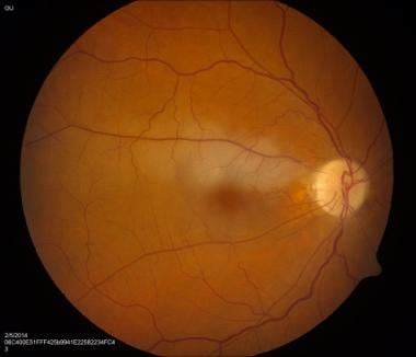 Color fundus photo of right eye with superior bran
