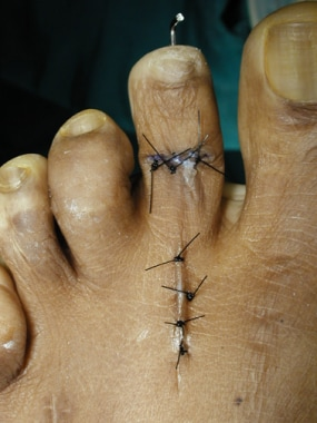 Claw toe. Bent pin at the end of the toe; the prox