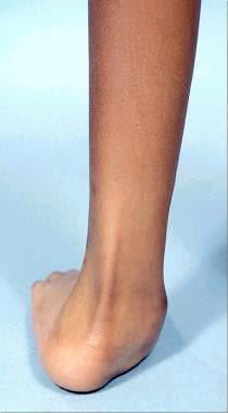 Type IA fibular hemimelia in 8-year-old boy. Signi