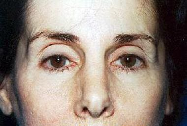 One year after endoscopic brow lift, no fixation p