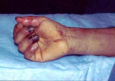 Prolonged limb ischemia resulting in tissue necros