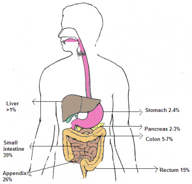 Distribution of carcinoid tumors.